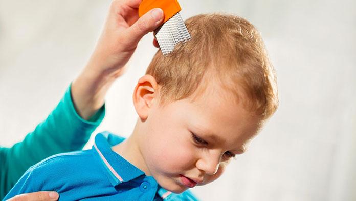 Czy szampon na wszy dla dzieci to dobra idea